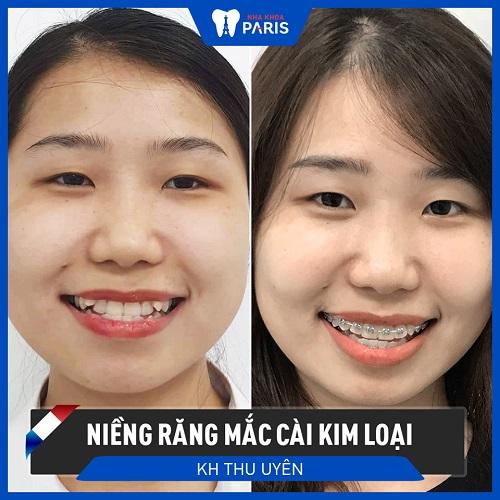 niềng răng xong có đẹp hơn không